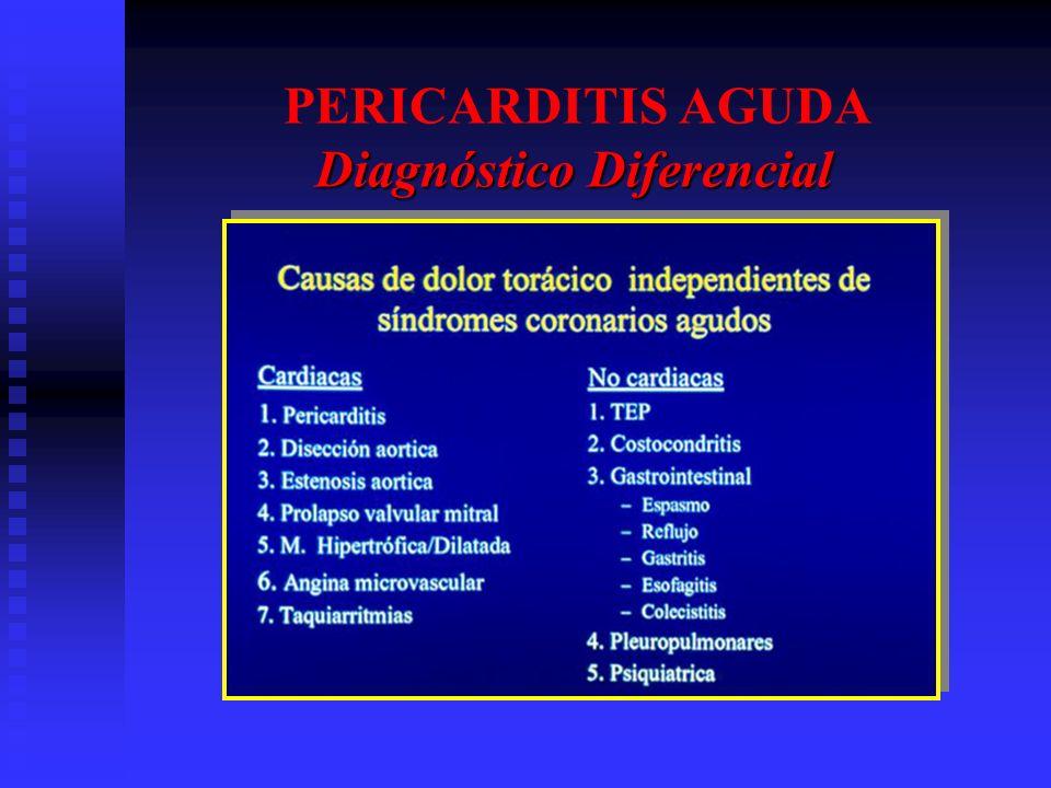 Diagnóstico Diferencial PERICARDITIS AGUDA Diagnóstico Diferencial