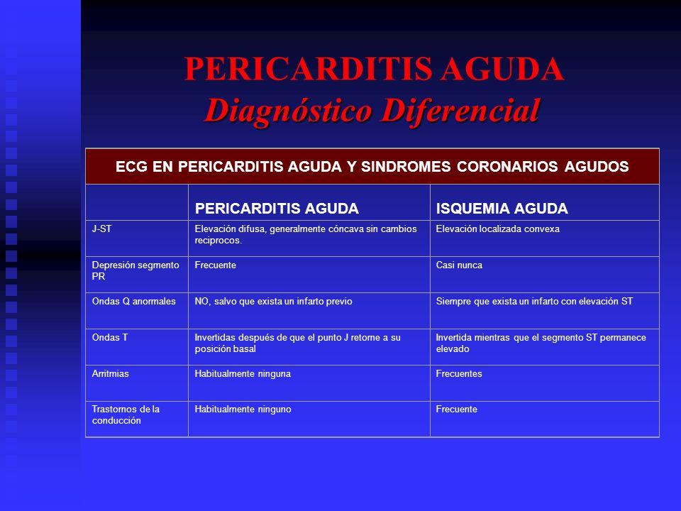 ECG EN PERICARDITIS AGUDA Y SINDROMES CORONARIOS AGUDOS PERICARDITIS AGUDAISQUEMIA AGUDA J-STElevación difusa, generalmente cóncava sin cambios recipr