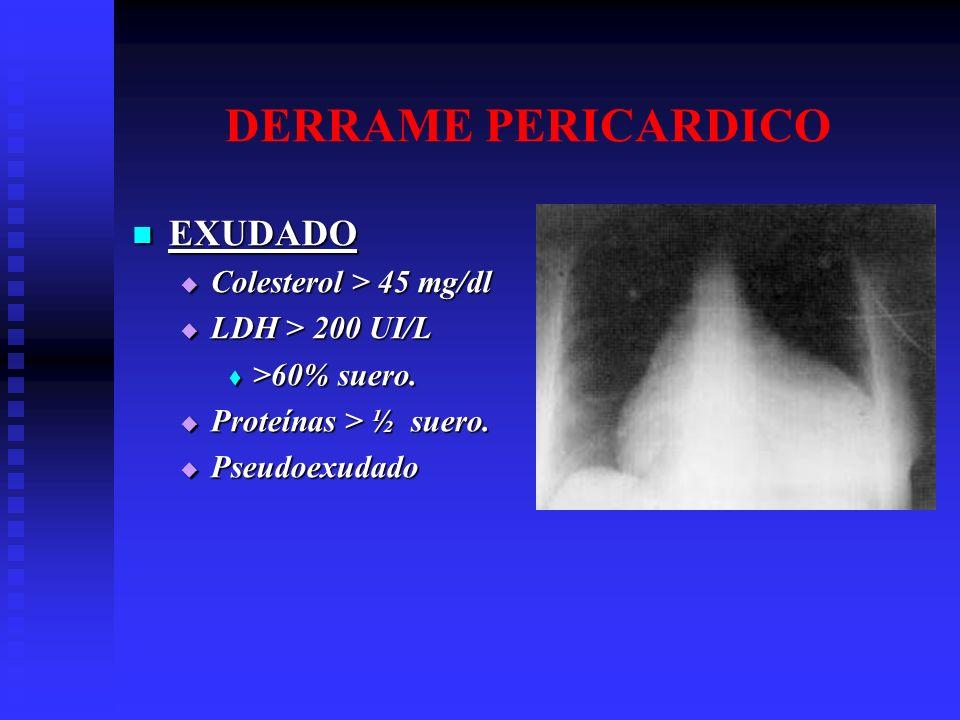EXUDADO EXUDADO Colesterol > 45 mg/dl Colesterol > 45 mg/dl LDH > 200 UI/L LDH > 200 UI/L >60% suero. >60% suero. Proteínas > ½ suero. Proteínas > ½ s