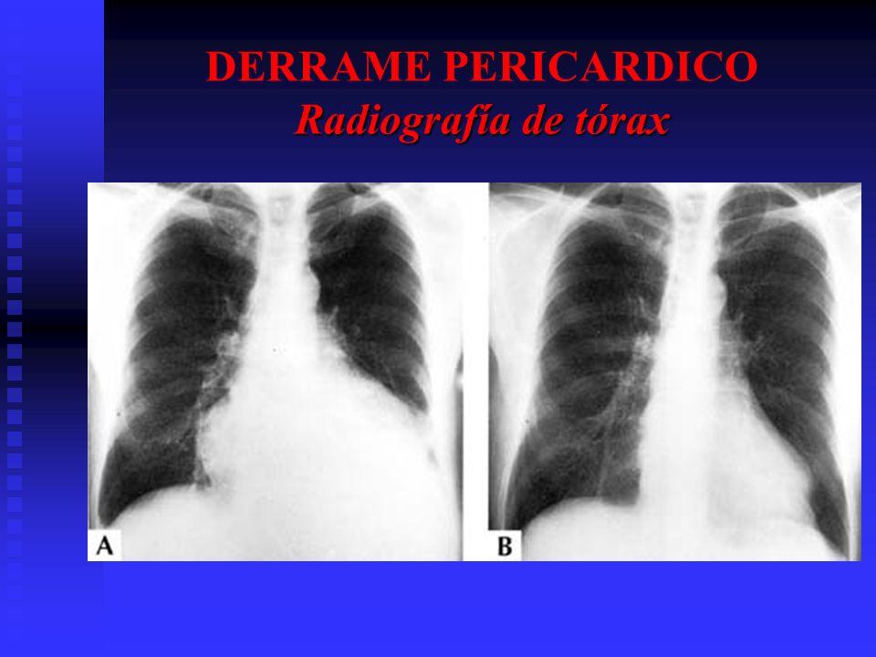 Radiografía de tórax DERRAME PERICARDICO Radiografía de tórax