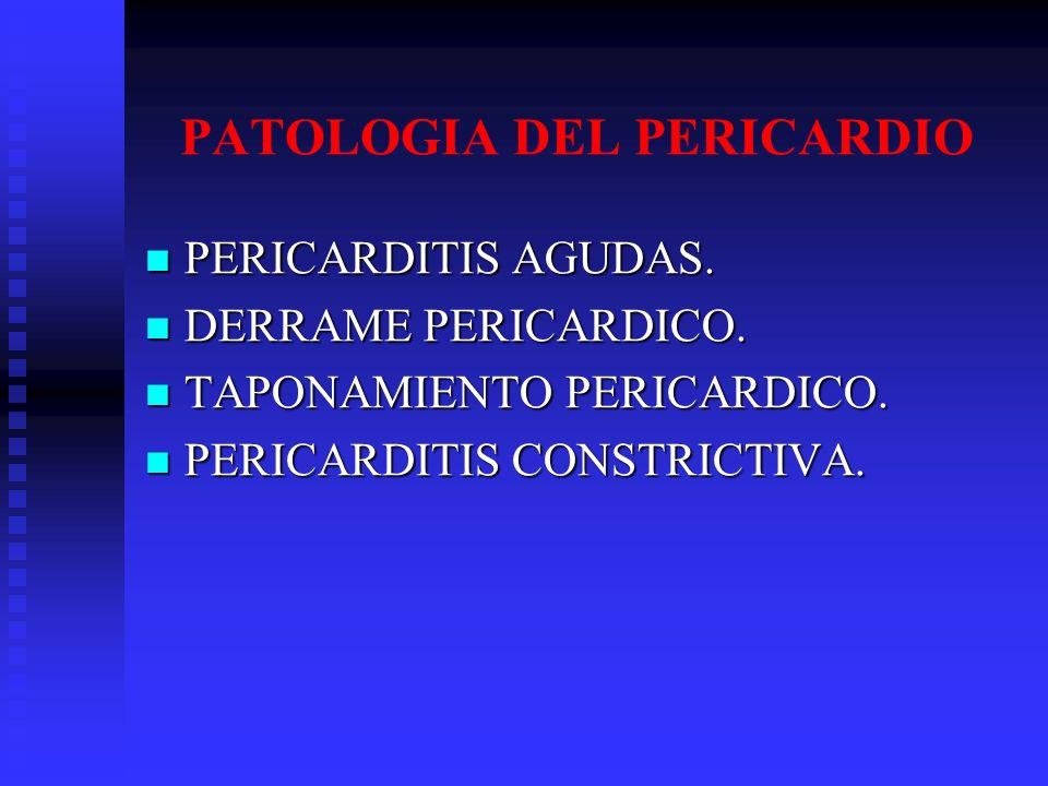 I.Acute pericarditis ( 6 weeks) A. Fibrinous B. Effusive (serous or sanguineous) II.