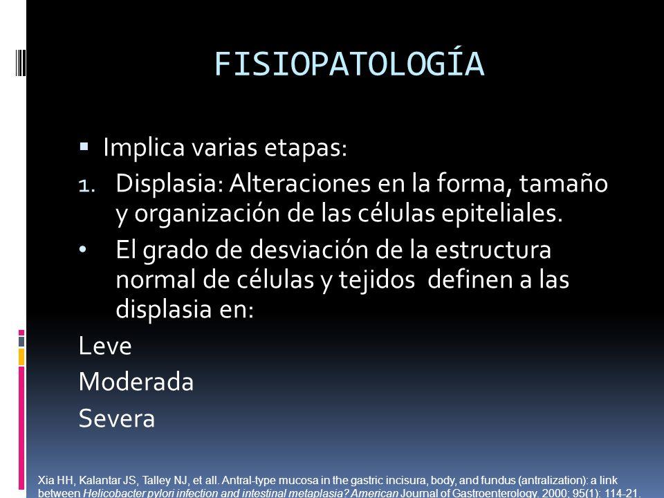FISIOPATOLOGÍA Implica varias etapas: 1. Displasia: Alteraciones en la forma, tamaño y organización de las células epiteliales. El grado de desviación