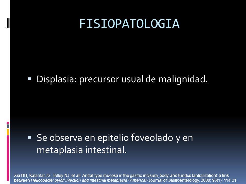 FISIOPATOLOGIA Displasia: precursor usual de malignidad. Se observa en epitelio foveolado y en metaplasia intestinal. Xia HH, Kalantar JS, Talley NJ,
