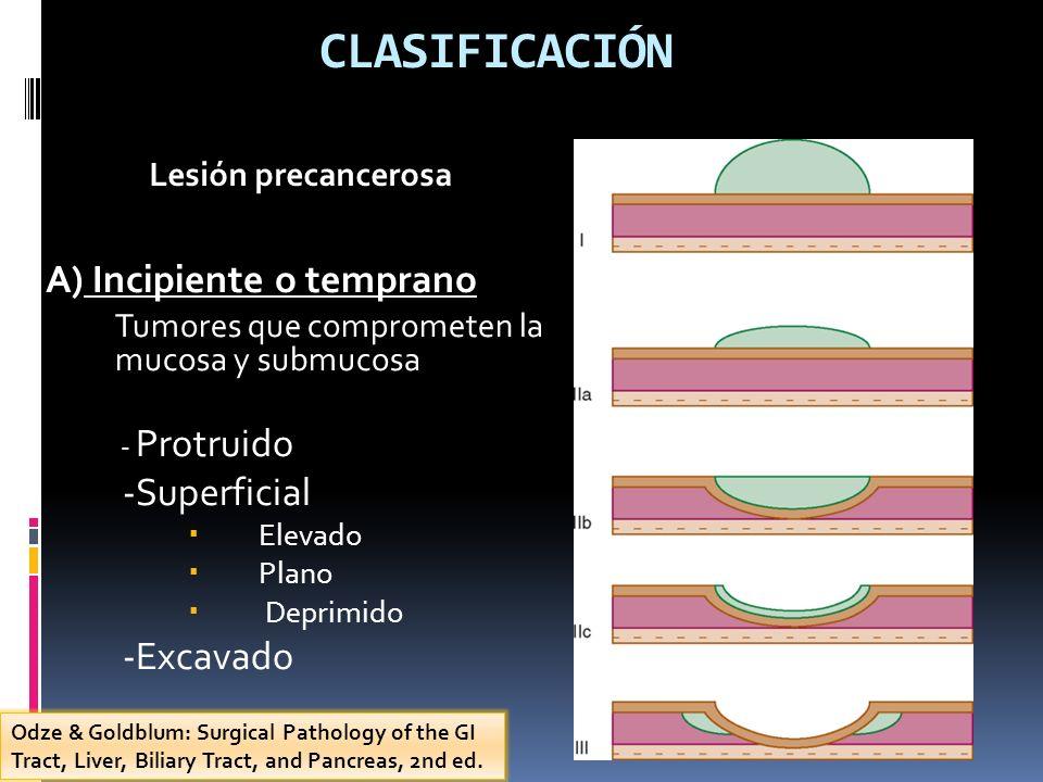 CLASIFICACIÓN A) Incipiente o temprano Tumores que comprometen la mucosa y submucosa - Protruido -Superficial Elevado Plano Deprimido -Excavado Lesión