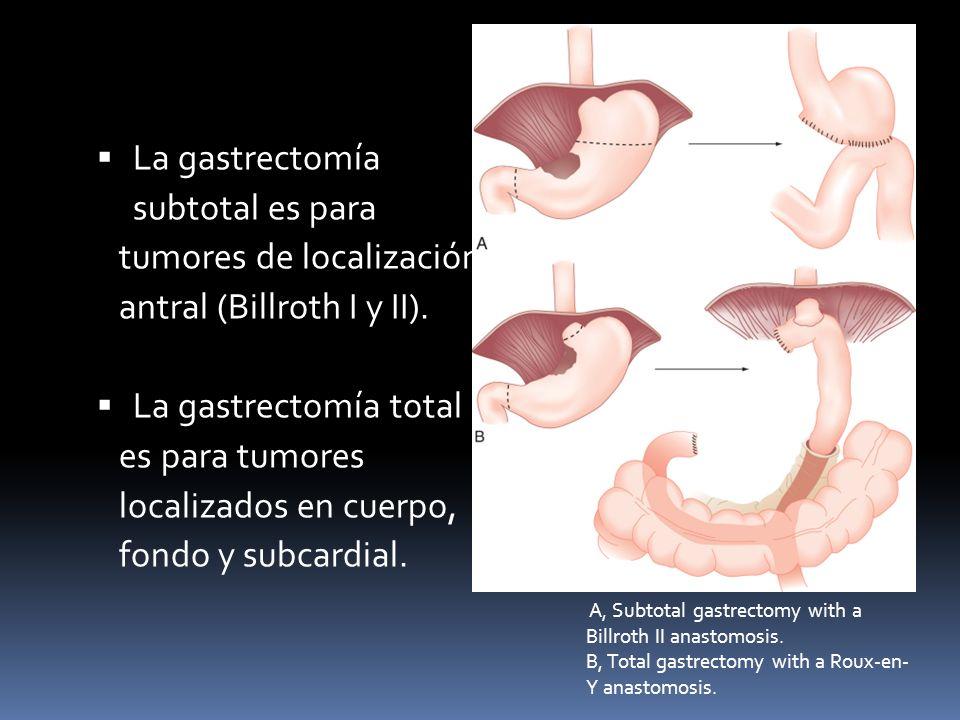 La gastrectomía subtotal es para tumores de localización antral (Billroth I y II). La gastrectomía total es para tumores localizados en cuerpo, fondo