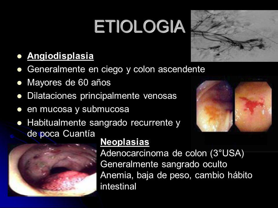 ETIOLOGIA Angiodisplasia Generalmente en ciego y colon ascendente Mayores de 60 años Dilataciones principalmente venosas en mucosa y submucosa Habitua