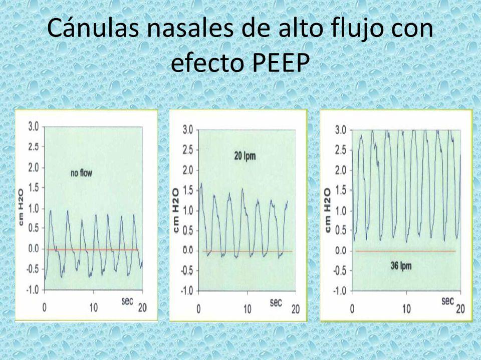 Cánulas nasales de alto flujo con efecto PEEP