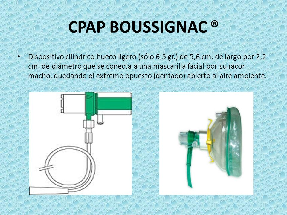 CPAP BOUSSIGNAC ® Dispositivo cilíndrico hueco ligero (sólo 6,5 gr.) de 5,6 cm. de largo por 2,2 cm. de diámetro que se conecta a una mascarilla facia