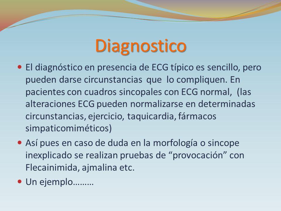 Diagnostico El diagnóstico en presencia de ECG típico es sencillo, pero pueden darse circunstancias que lo compliquen. En pacientes con cuadros sincop