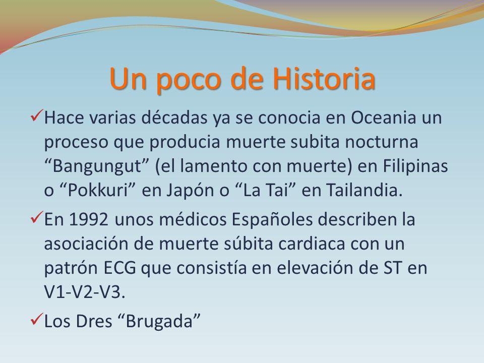 Un poco de Historia Hace varias décadas ya se conocia en Oceania un proceso que producia muerte subita nocturna Bangungut (el lamento con muerte) en F