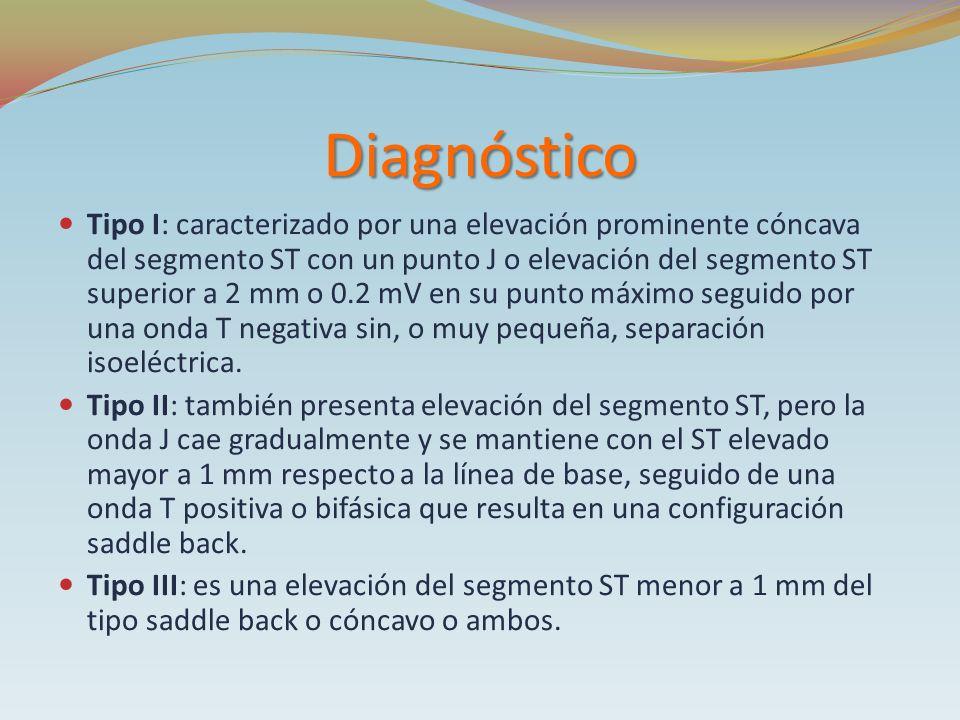 Diagnóstico Tipo I: caracterizado por una elevación prominente cóncava del segmento ST con un punto J o elevación del segmento ST superior a 2 mm o 0.