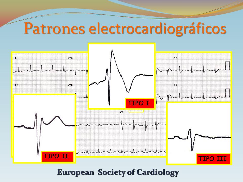 TIPO I TIPO II TIPO III European Society of Cardiology Patrones electrocardiográficos