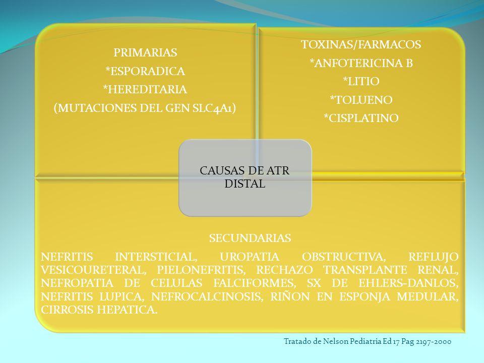 PRIMARIAS *ESPORADICA *HEREDITARIA (MUTACIONES DEL GEN SLC4A1) TOXINAS/FARMACOS *ANFOTERICINA B *LITIO *TOLUENO *CISPLATINO SECUNDARIAS NEFRITIS INTER