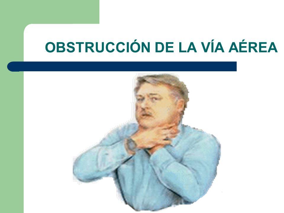 OBSTRUCCIÓN DE LA VÍA AÉREA