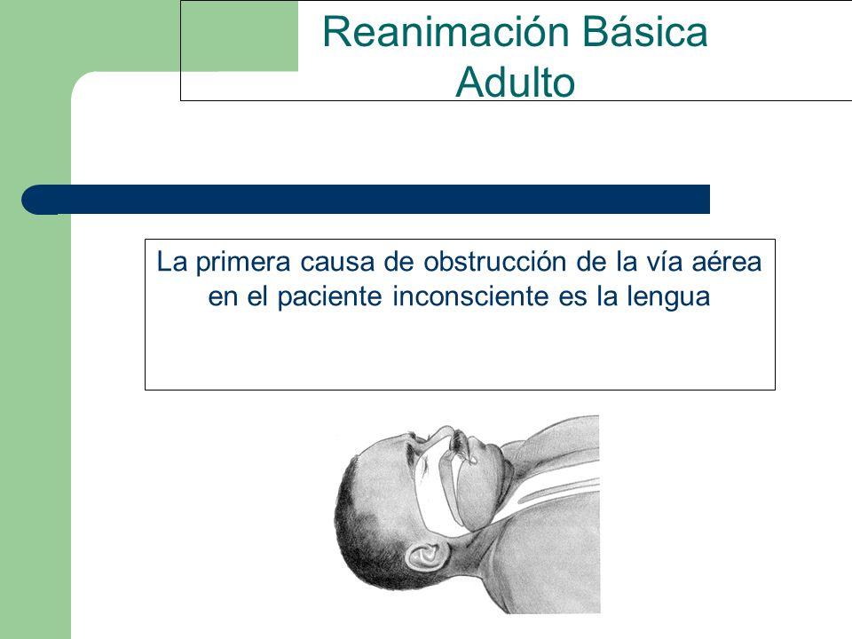 Reanimación Básica Adulto La primera causa de obstrucción de la vía aérea en el paciente inconsciente es la lengua