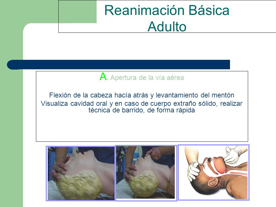 Reanimación Básica Adulto A. Apertura de la vía aérea Flexión de la cabeza hacía atrás y levantamiento del mentón Visualiza cavidad oral y en caso de
