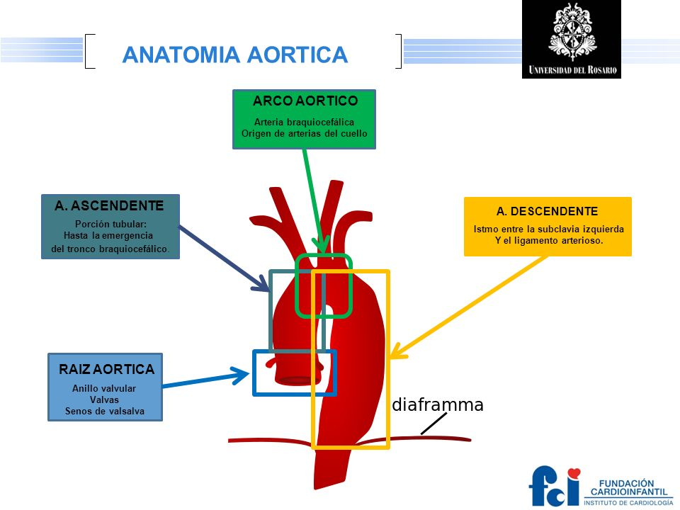 LOGO Otras condiciones cardiovasculares asociadas Con aneurisma de aorta torácica y disección.