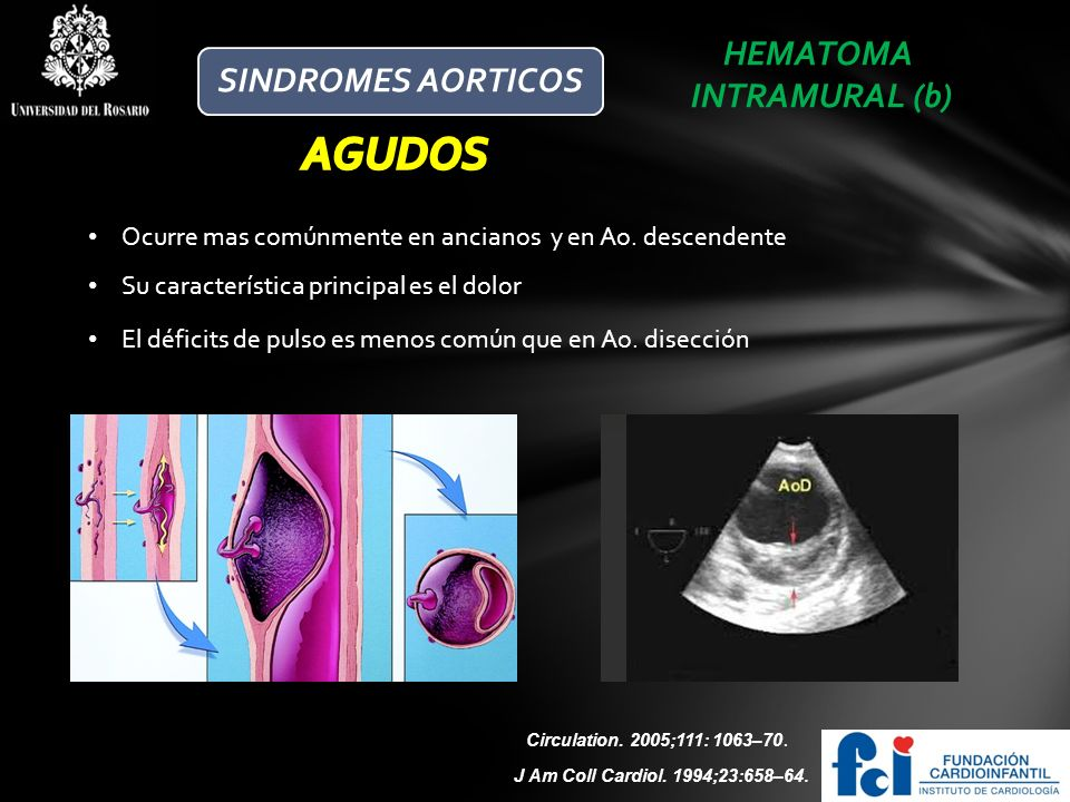 HEMATOMA INTRAMURAL (b) Ocurre mas comúnmente en ancianos y en Ao. descendente J Am Coll Cardiol. 1994;23:658–64. Circulation. 2005;111: 1063–70. Su c