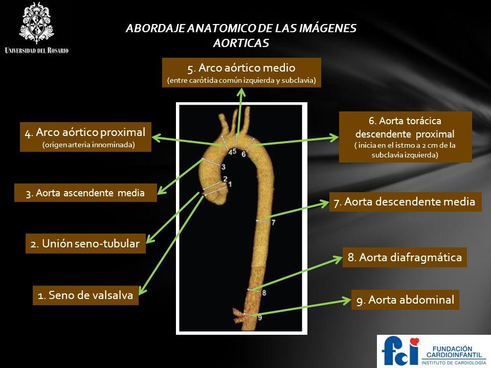 LOGO Enfermedades inflamatorias asociadas con patologías De aorta torácica.