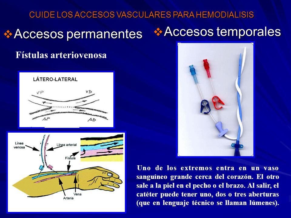 Accesos temporales Accesos temporales Accesos permanentes Accesos permanentes Fístulas arteriovenosa Uno de los extremos entra en un vaso sanguíneo gr