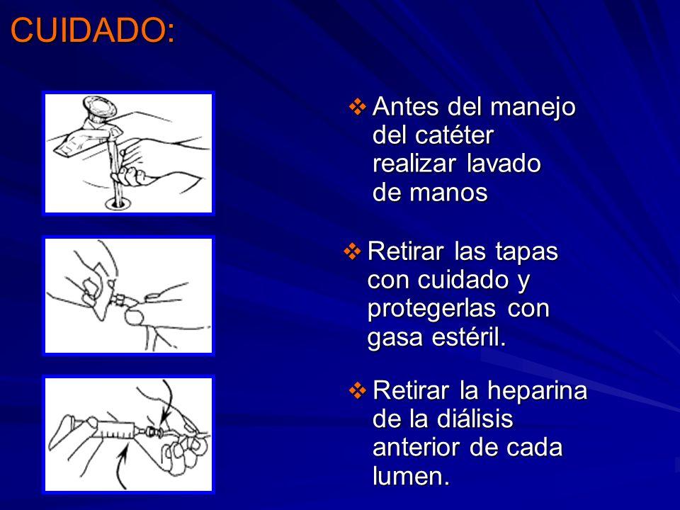 CUIDADO: Antes del manejo del catéter realizar lavado de manos Antes del manejo del catéter realizar lavado de manos Retirar las tapas con cuidado y p