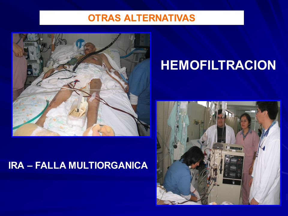OTRAS ALTERNATIVAS HEMOFILTRACION IRA – FALLA MULTIORGANICA