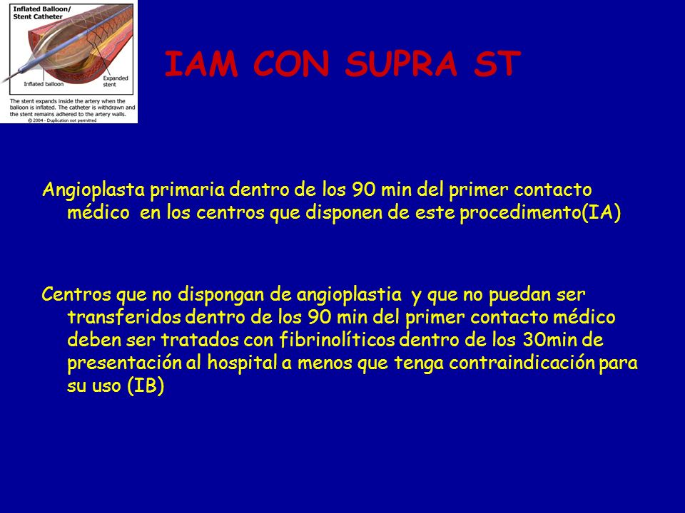 IAM CON SUPRA ST Angioplasta primaria dentro de los 90 min del primer contacto médico en los centros que disponen de este procedimento(IA) Centros que
