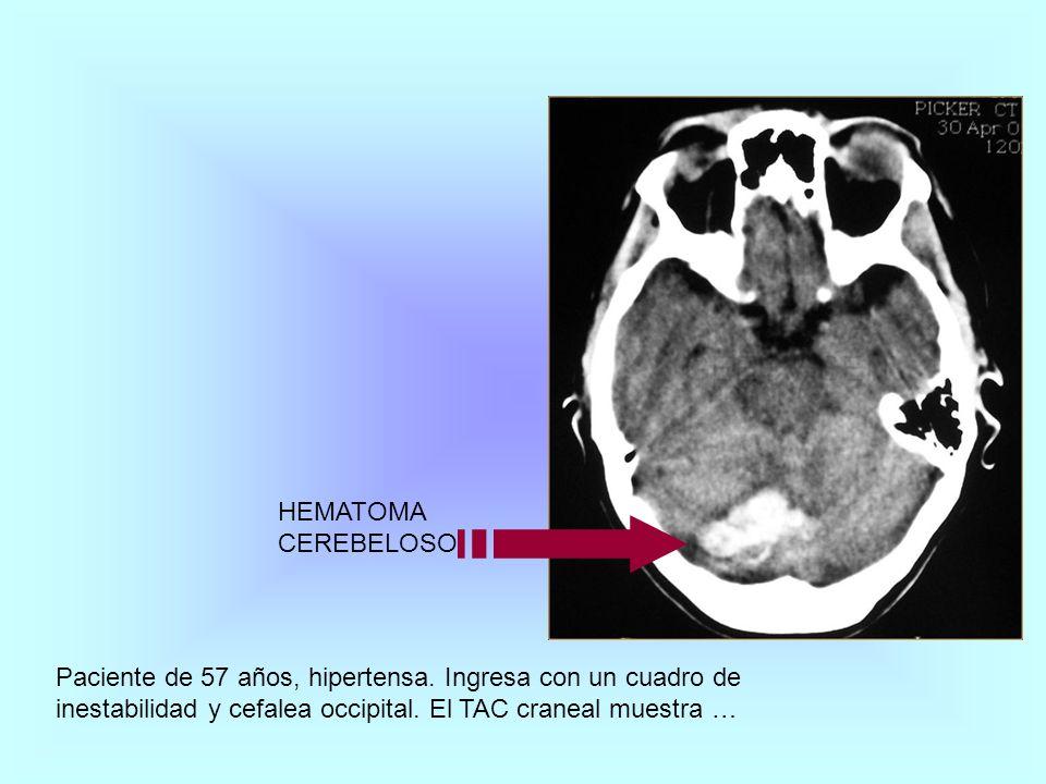 Paciente de 57 años, hipertensa. Ingresa con un cuadro de inestabilidad y cefalea occipital. El TAC craneal muestra … HEMATOMA CEREBELOSO