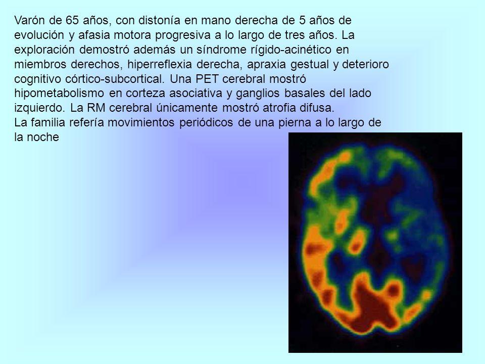 Paciente de 57 años, hipertensa.Ingresa con un cuadro de inestabilidad y cefalea occipital.