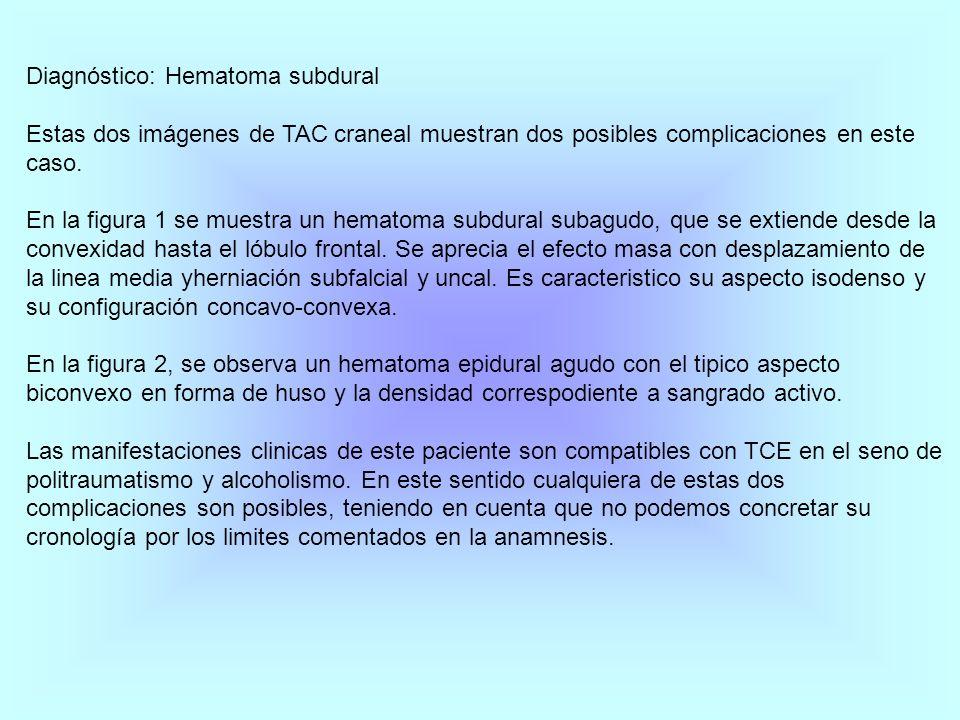 Diagnóstico: Hematoma subdural Estas dos imágenes de TAC craneal muestran dos posibles complicaciones en este caso. En la figura 1 se muestra un hemat