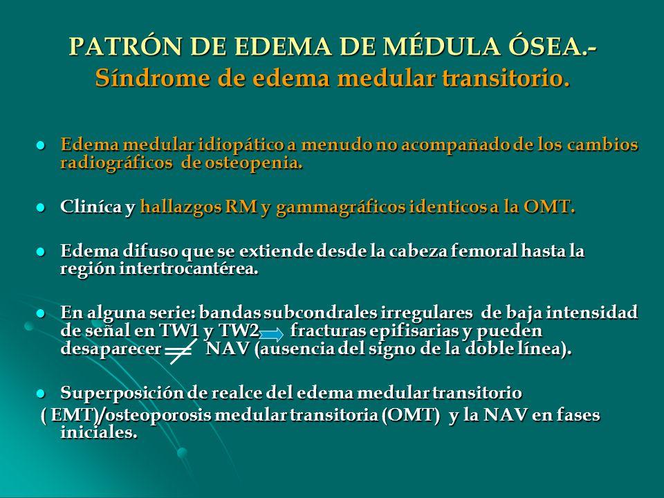 PATRÓN DE EDEMA DE MÉDULA ÓSEA.- Síndrome de edema medular transitorio. Edema medular idiopático a menudo no acompañado de los cambios radiográficos d