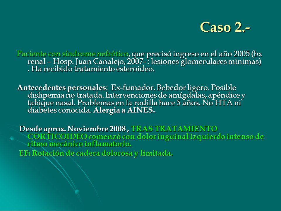 Caso 2.- Paciente con síndrome nefrótico, que precisó ingreso en el año 2005 (bx renal – Hosp. Juan Canalejo, 2007- : lesiones glomerulares mínimas).