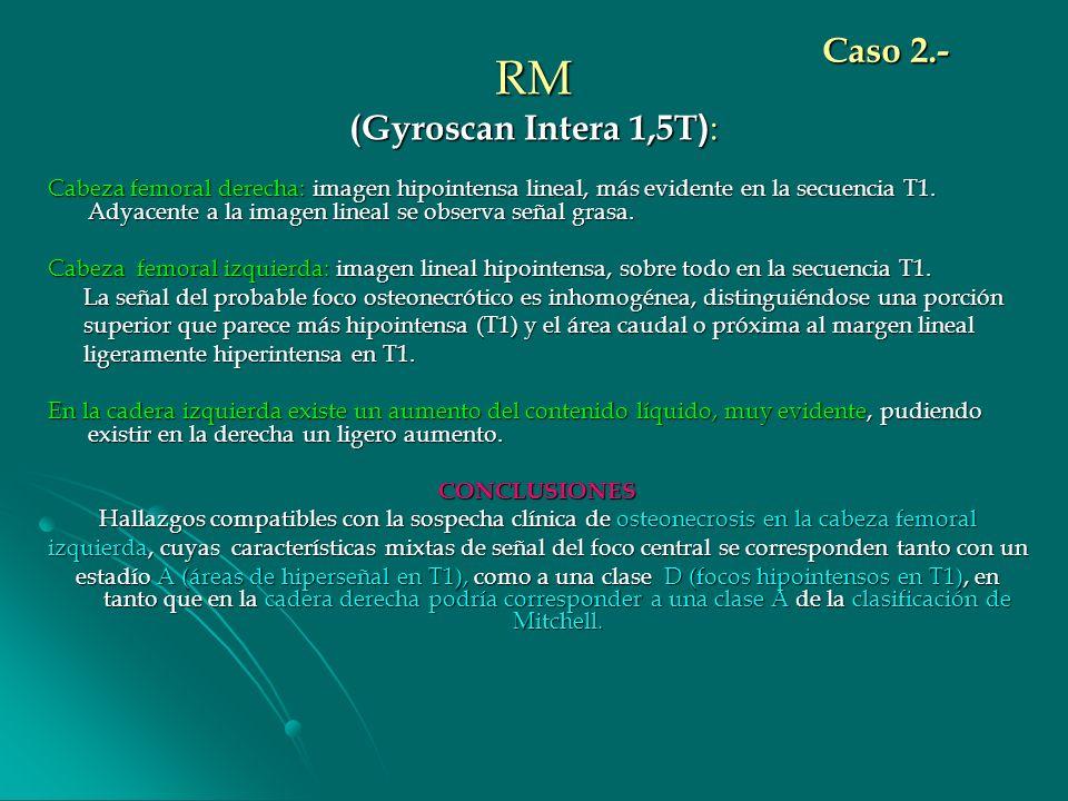 RM (Gyroscan Intera 1,5T ) : Cabeza femoral derecha: imagen hipointensa lineal, más evidente en la secuencia T1. Adyacente a la imagen lineal se obser