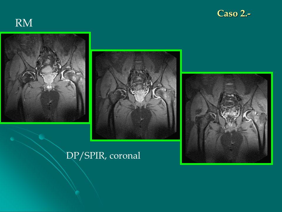 DP/SPIR, coronal RM Caso 2.-