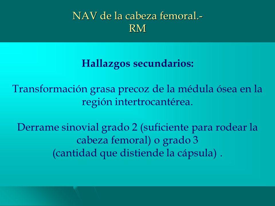 NAV de la cabeza femoral.- RM La lesión necrótica suele comenzar en la porción ant-sup y queda limitada por un borde de baja intensidad en todas las s
