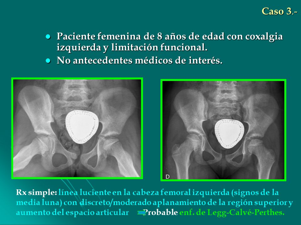 Caso 3.- Paciente femenina de 8 años de edad con coxalgia izquierda y limitación funcional. Paciente femenina de 8 años de edad con coxalgia izquierda