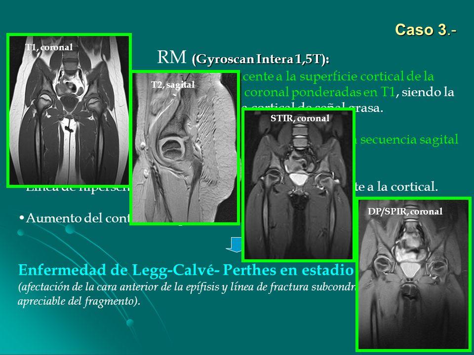 (Gyroscan Intera 1,5T): RM (Gyroscan Intera 1,5T): Evidencia de línea hipointensa subyacente a la superficie cortical de la cabeza femoral izquierda e
