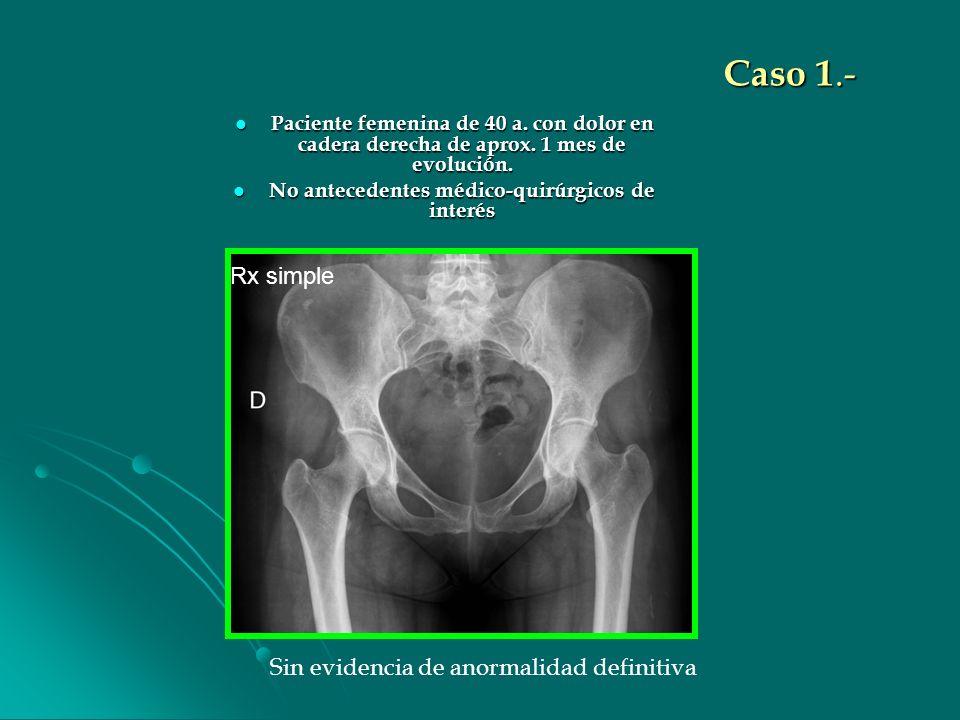 Caso 1.- Paciente femenina de 40 a. con dolor en cadera derecha de aprox. 1 mes de evolución. Paciente femenina de 40 a. con dolor en cadera derecha d
