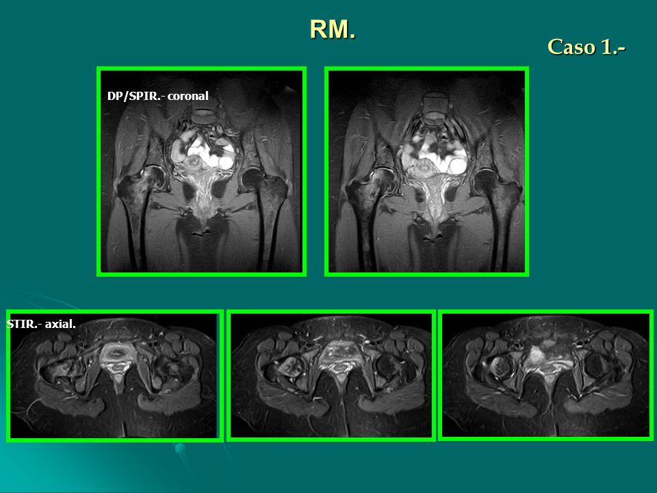 DP/SPIR.- coronal STIR.- axial. RM. Caso 1.-