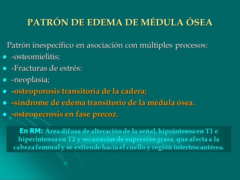 PATRÓN DE EDEMA DE MÉDULA ÓSEA Patrón inespecífico en asociación con múltiples procesos: Patrón inespecífico en asociación con múltiples procesos: -os