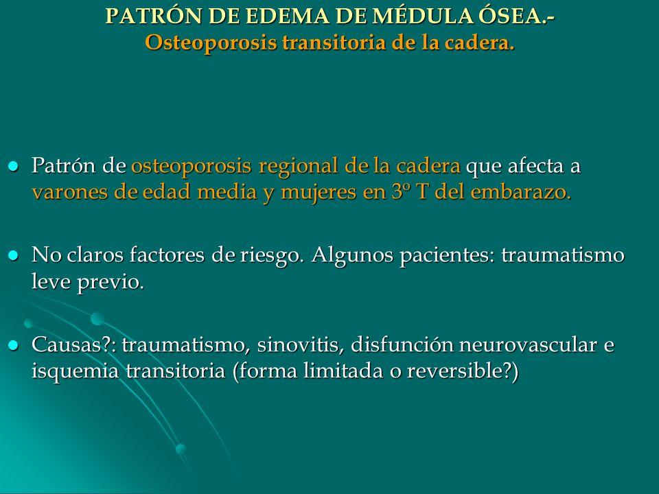 PATRÓN DE EDEMA DE MÉDULA ÓSEA.- Osteoporosis transitoria de la cadera. Patrón de osteoporosis regional de la cadera que afecta a varones de edad medi