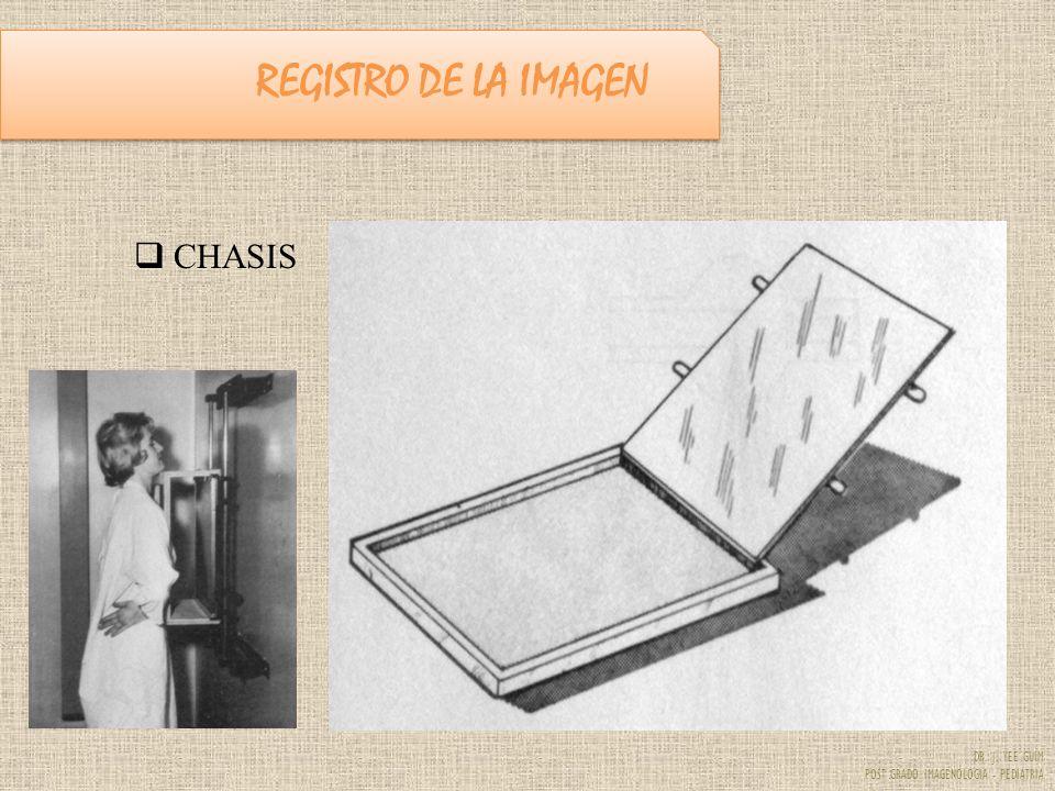 DR. J. YEE GUIM POST GRADO IMAGENOLOGIA - PEDIATRIA REGISTRO DE LA IMAGEN CHASIS