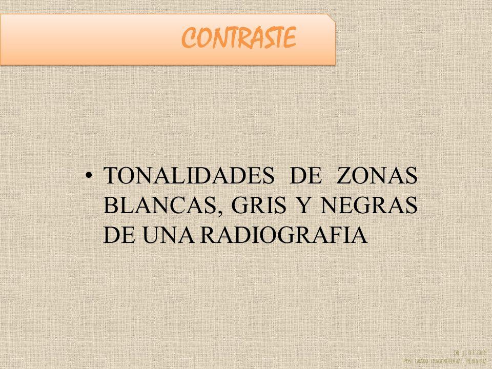 DR. J. YEE GUIM POST GRADO IMAGENOLOGIA - PEDIATRIA CONTRASTE TONALIDADES DE ZONAS BLANCAS, GRIS Y NEGRAS DE UNA RADIOGRAFIA