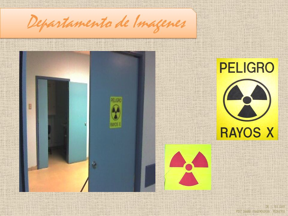DR. J. YEE GUIM POST GRADO IMAGENOLOGIA - PEDIATRIA RXTOMOGRAFIA