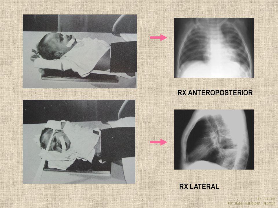 DR. J. YEE GUIM POST GRADO IMAGENOLOGIA - PEDIATRIA RX ANTEROPOSTERIOR RX LATERAL