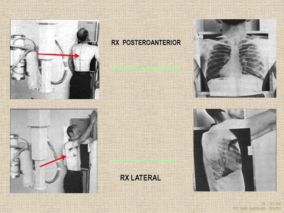 DR. J. YEE GUIM POST GRADO IMAGENOLOGIA - PEDIATRIA RX POSTEROANTERIOR RX LATERAL