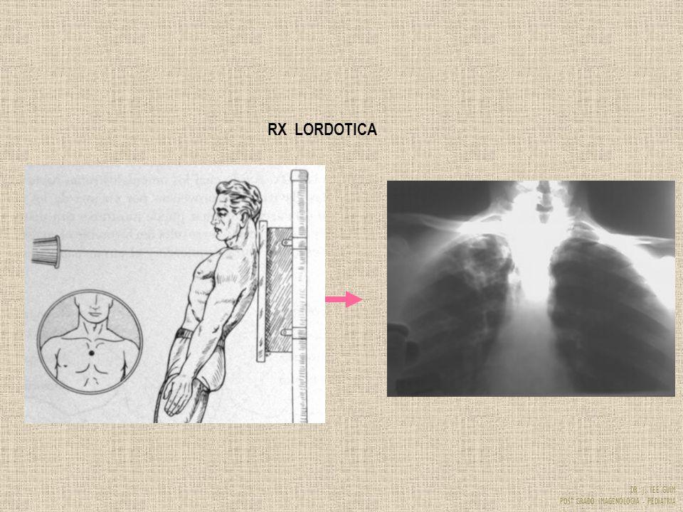 DR. J. YEE GUIM POST GRADO IMAGENOLOGIA - PEDIATRIA RX LORDOTICA