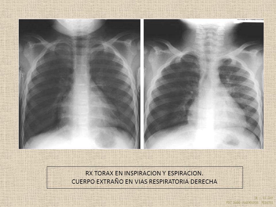 DR. J. YEE GUIM POST GRADO IMAGENOLOGIA - PEDIATRIA RX TORAX EN INSPIRACION Y ESPIRACION. CUERPO EXTRAÑO EN VIAS RESPIRATORIA DERECHA