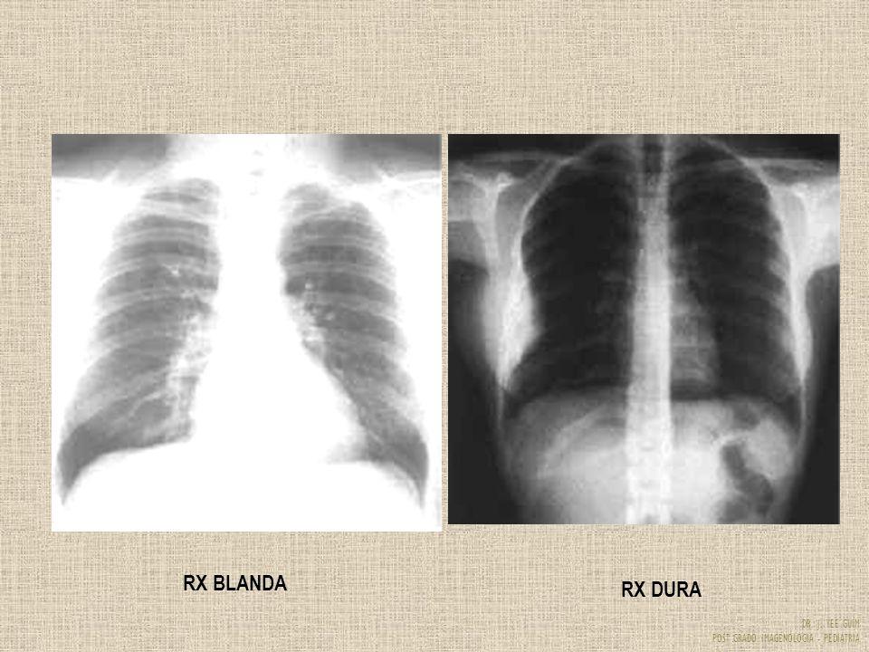 DR. J. YEE GUIM POST GRADO IMAGENOLOGIA - PEDIATRIA RX BLANDA RX DURA