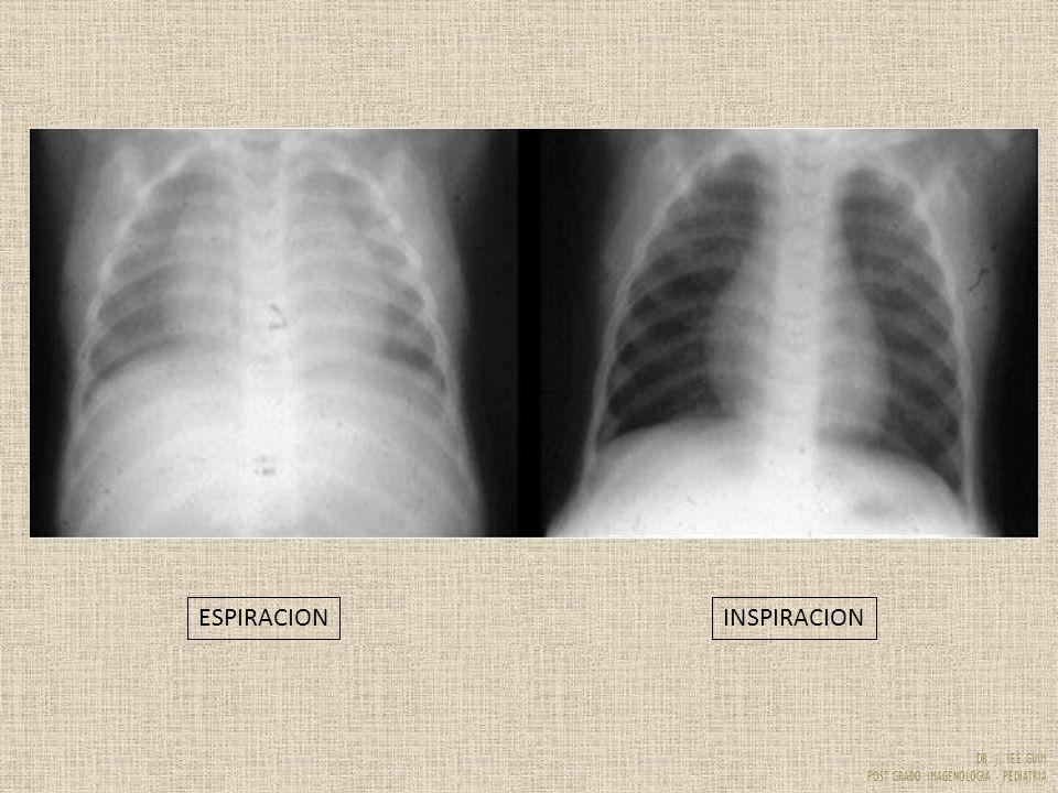 DR. J. YEE GUIM POST GRADO IMAGENOLOGIA - PEDIATRIA ESPIRACIONINSPIRACION